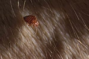 bed bug in hair picture
