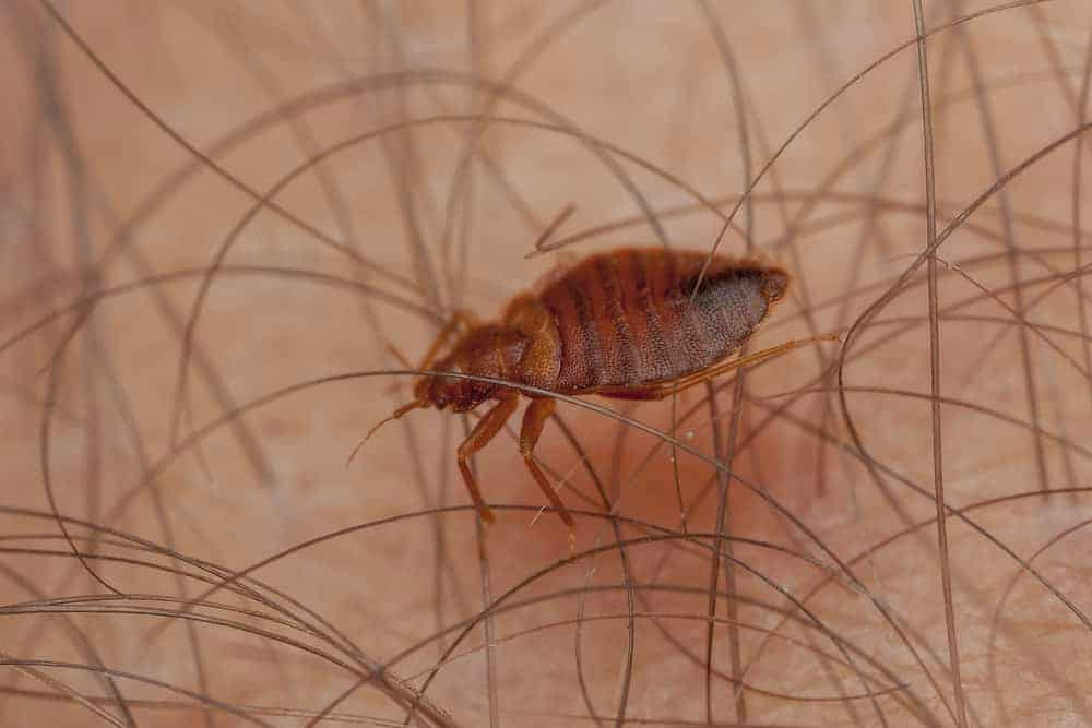 Bed Bugs In Hair | Symptoms, Pictures and Treatment for Bugs in Hair
