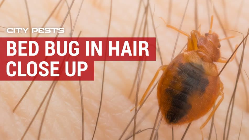 close up picture of a bed bug in hair